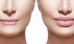 preenchimento labial com ácido hialurônico preço