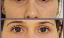 preenchimento na área dos olhos