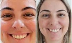 quanto custa preenchimento facial