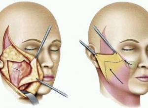 cirurgia de lifting facial