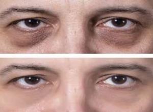 clareamento de olheiras a laser preço