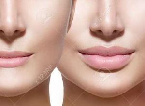 preço de preenchimento labial
