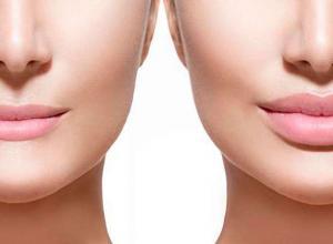 preço do preenchimento labial