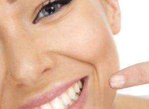 preenchimento bigode chinês com gordura