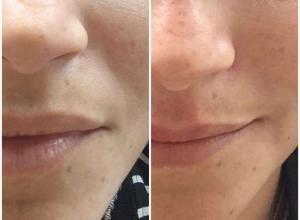 preenchimento bigode chinês preço