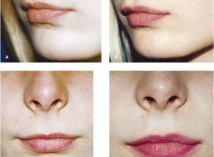 preenchimento de lábios