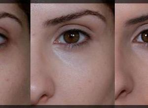 preenchimento de olheiras