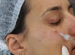 preenchimento de olheiras com ácido hialurônico