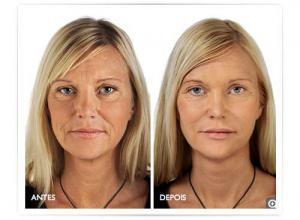 preenchimento facial definitivo