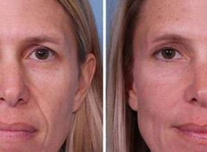 preenchimento facial quanto custa