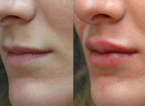 preenchimento nos lábios