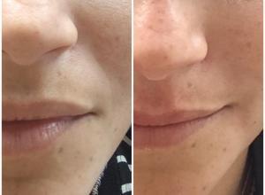 quanto custa preenchimento bigode chinês