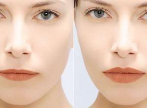 tratamento de olheiras