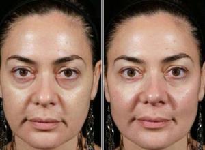 tratamento para olheiras fundas