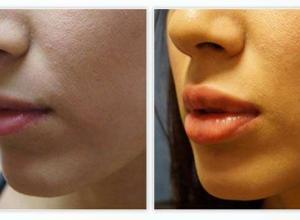 valor de preenchimento labial