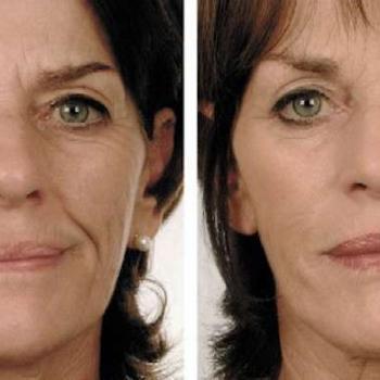 preenchimento facial bigode chinês