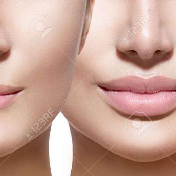 quanto custa preenchimento labial