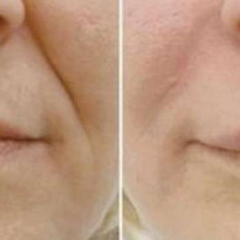tratamento bigode chinês