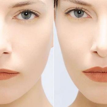 tratamento olheiras laser preço