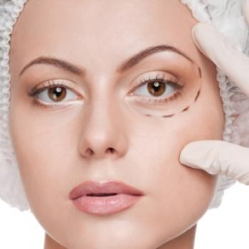 tratamento para olheiras